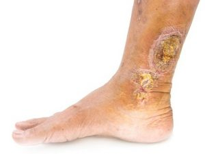 How Often Should a Diabetic See a Podiatrist?