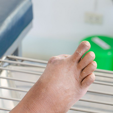 amputated toe