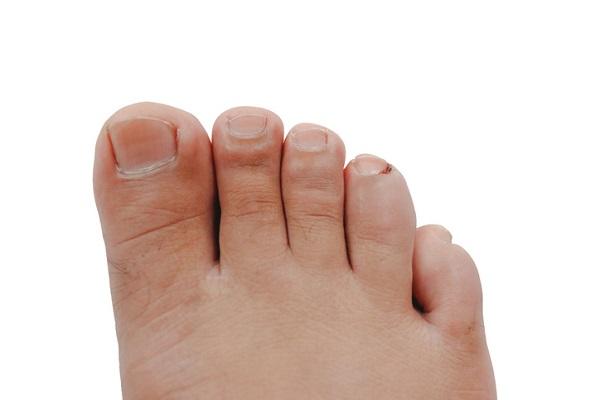 podiatrist ingrown toenail treatment